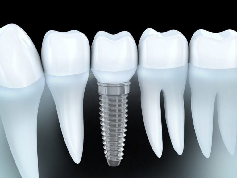 Dental-Implants-768x576