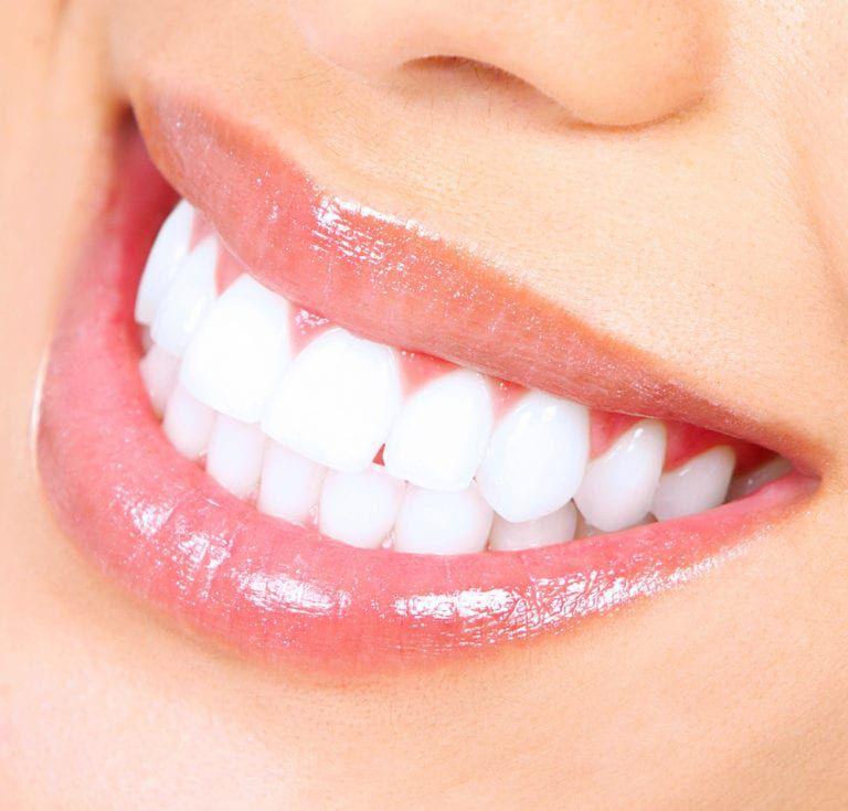 Teeth-Whitening-768x735